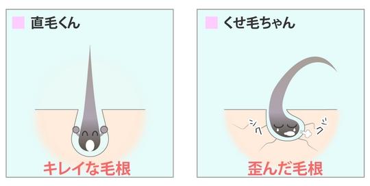 毛根の比較図